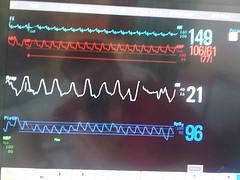English: Monitor of vital signs in intensive c...