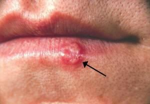 Herpes cold sore image credit: Wikipedia