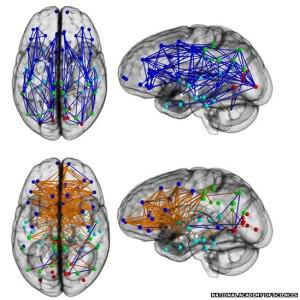 Study: The Brains Of Men And Women Are Different...With A Few Major Caveats