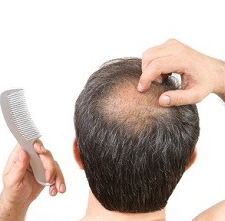Hair loss breakthroughs have been few and far between (photo: wiki image)